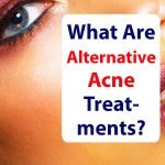 Superfood-Acne-Alternative