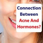 Superfood-Acne-Hormones